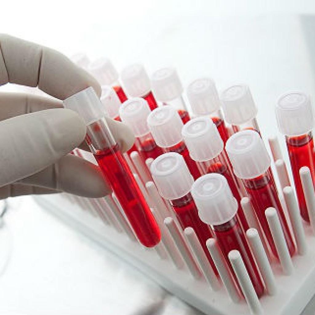 Норма сахара в крови у детей: интерпретация анализа