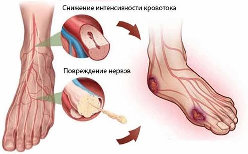 Боль в ногах при сахарном диабете фото