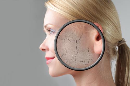Шелушение кожи симптом повышенного сахара